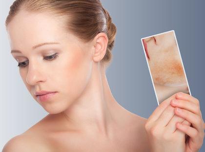 Jak se starat o citlivou pokožku
